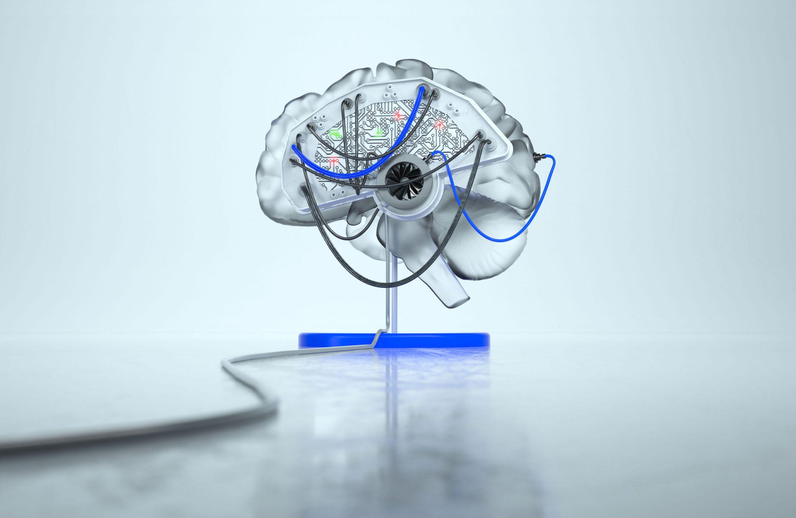 ND Brain